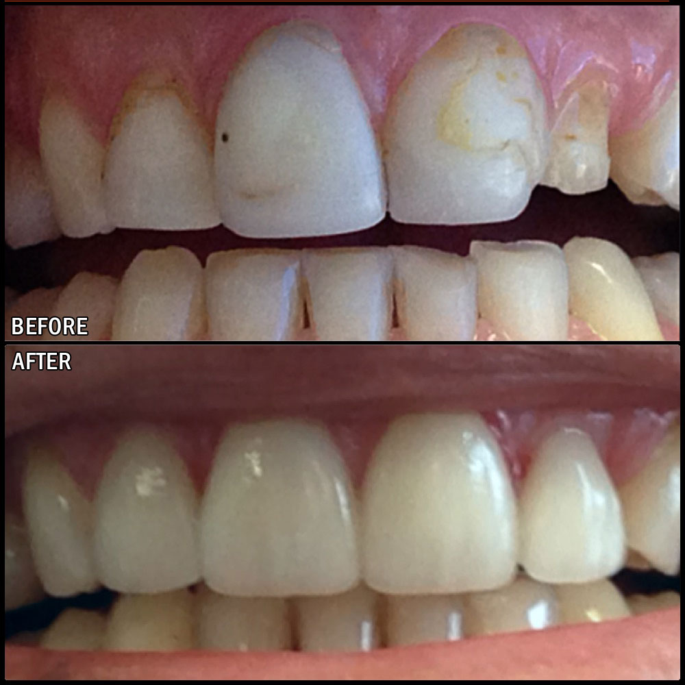 Crowns Before & After