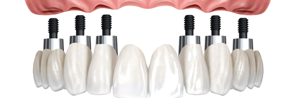 Prosthodontry & Implants
